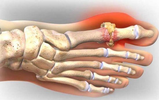 Соли на суставе пальца