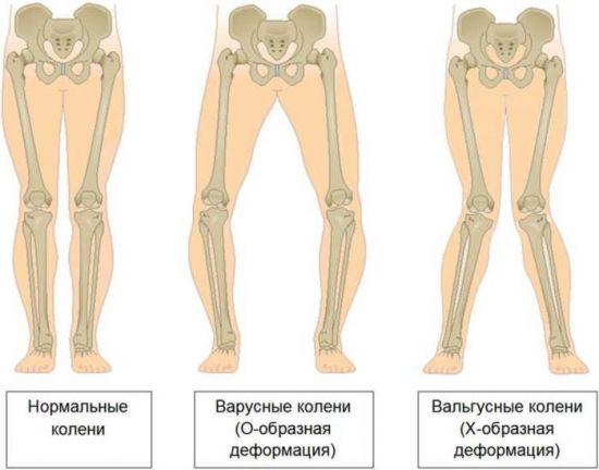 Виды искривлений ног
