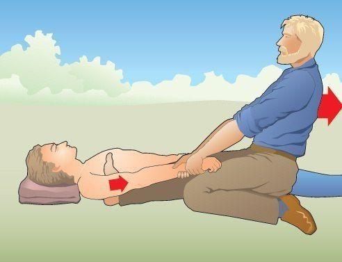 Вправление плеча