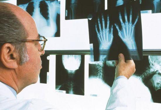 Врач смотрит на рентген-снимки