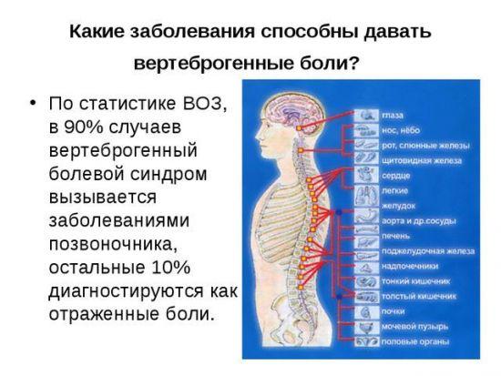 Вертеброгенные боли