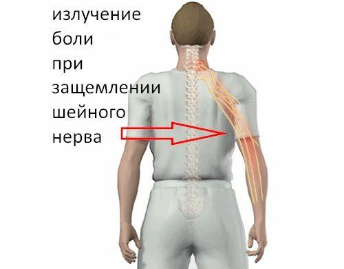Боль в руке при защемлении шейного нерва