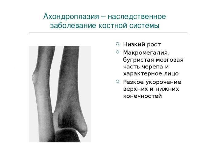 Ахондроплазия