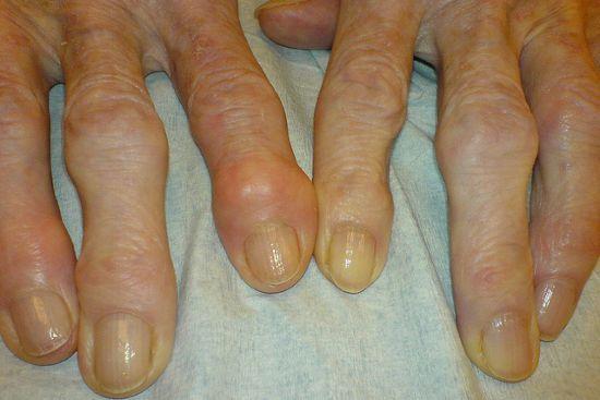Узелки на пальцах