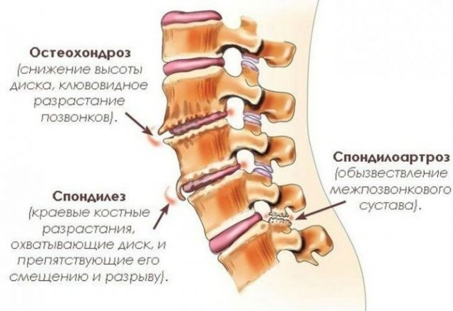 Заболевания позвоночника, вызывающие боли в шее после сна