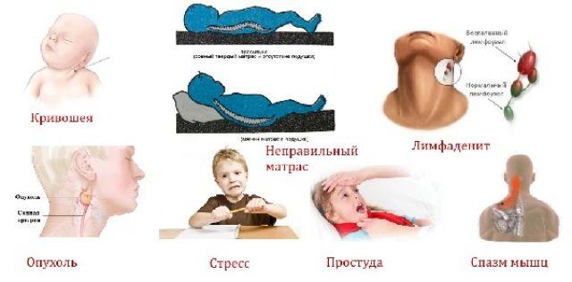 Боли в шее после сна у детей