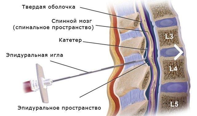 Техника проведения эпидуральной анестезии