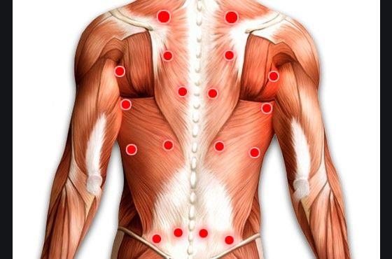 Размещение триггерных точек при миозите спины