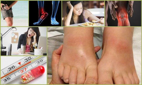Боль, температура при артрите