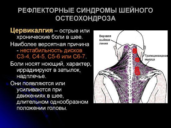 Рефлекторные синдромы шейного остеохондроза