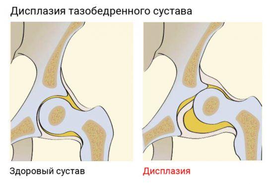 Дисплазия тазобедренного сустава