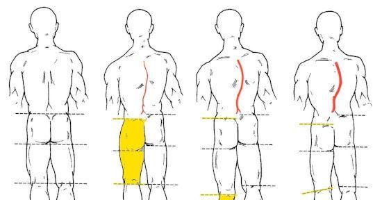 Разная длина ног