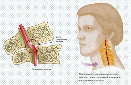 Ущемление позвоночной артерии