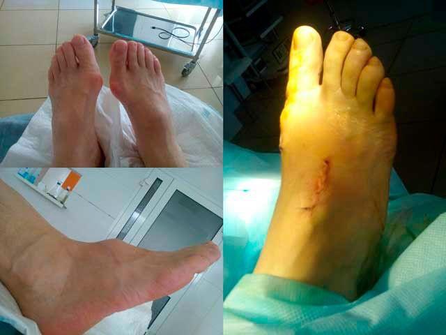 Лазерное удаление косточки на ноге