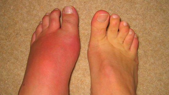 Опухшая нога