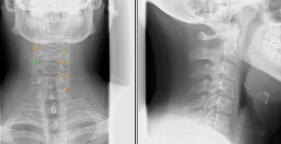 Рентген-снимок шейных позвонков