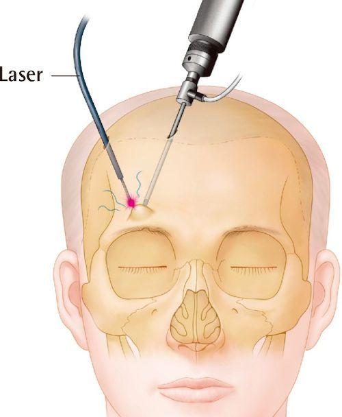 Лазерное удаление остеомы