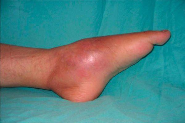 Опухшая воспаленная нога