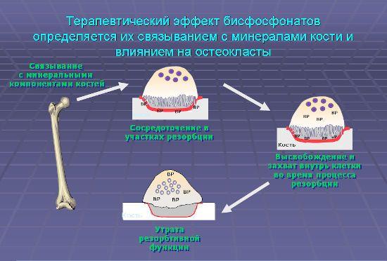 Эффект бисфосфонатов