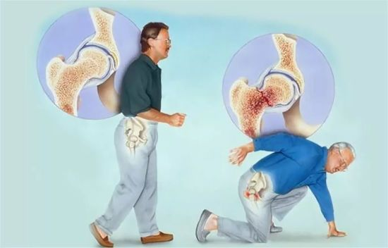 Перелом тазобедренного сустава