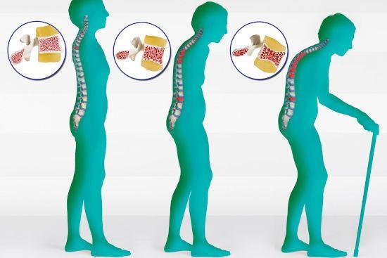 Позвоночник при остеопорозе