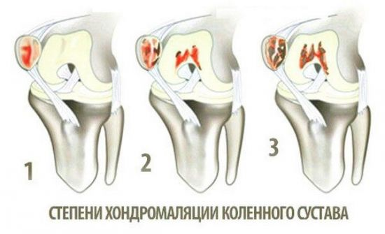 Степени хондромаляции коленного сустава