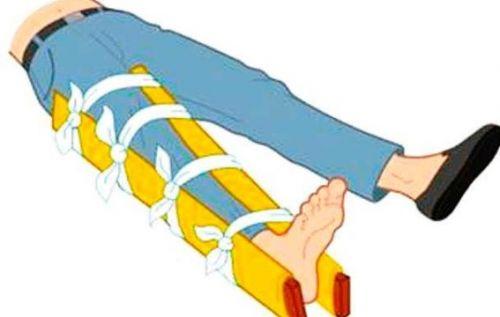 Наложение шины при травме бедра