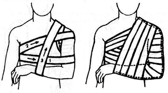 Повязка Дезо на плече