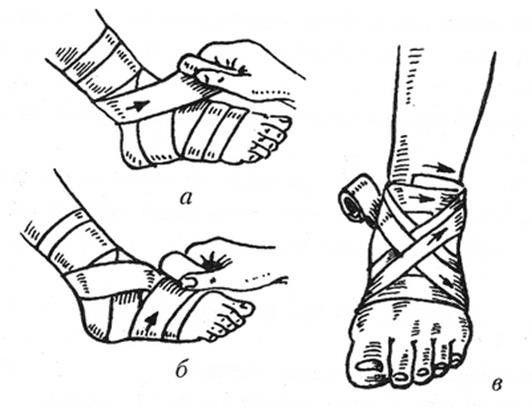 Техника наложения 8-образной повязки на голеностоп
