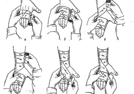 Наложение повязки на лучезапястный сустав