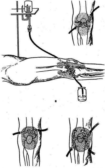 Дренирование коленного сустава при гнойном гоните