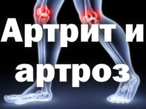 Суставы, надпись: артрит и артроз