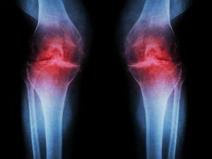 Артрит коленных суставов