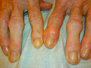 Пальцы с артритом