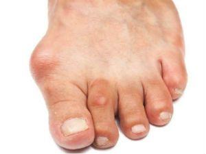 Артроз пальцев ноги