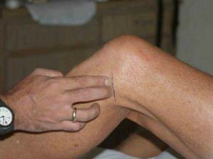 Боль в колене сбоку с внешней стороны причины и что делать