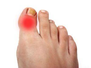 Боль в большом пальце на ноге