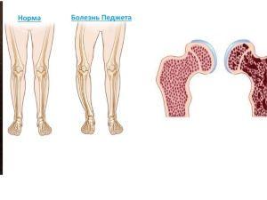 Деформация костей при болезни Педжета