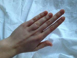 Короткие пальцы на руке