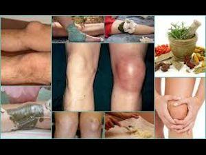 Методы лечения воспаленного колена