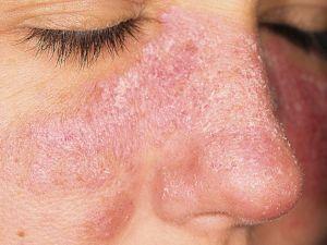 Кожные поражения на лице