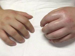 Опухшие руки