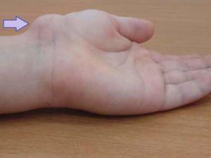 Шишка на кисти руки