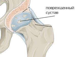 Поврежденный тазобедренный сустав