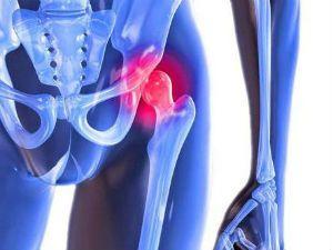 Воспаление тазобедренного сустава