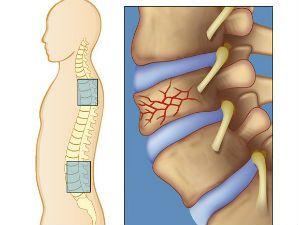 Декомпрессионный перелом позвоночника: симптомы и причины травмирования, первая помощь до приезда скорой и дальнейшее лечение, длительность реабилитации и прогноз, запрещенные действия