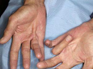 Пальцы руки плохо сгибаются