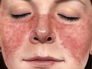 Красное лицо у женщины, сыпь