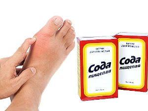 Нога и пищевая сода