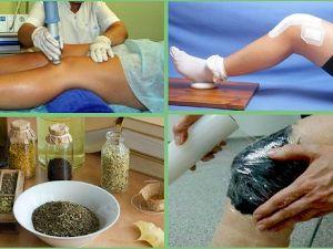 Методы лечения колена